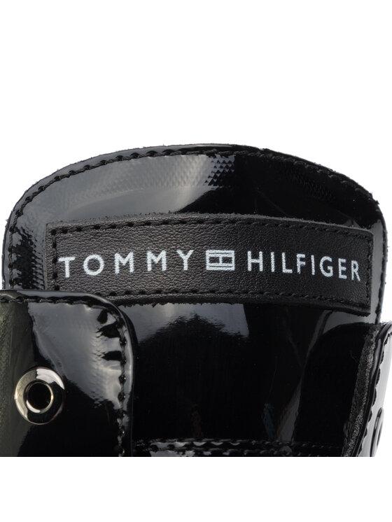 Tommy Hilfiger Tommy Hilfiger Botki Lace-Up Bootie T4A5-30445-0765 D Czarny